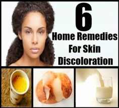 Home Remedies For Skin Discoloration | Medi Tricks