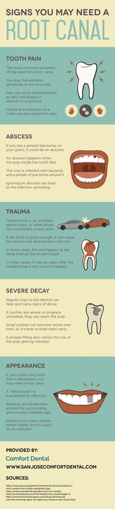 Some people need root canal treatment after experiencing some type of trauma! Take a look at this infographic about dental care in San Jose to see how a traumatic event such as a sports injury can lead to the need for root canal therapy.