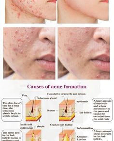 Brand Name: RtopR Formulation: Lotion Feature: Acne Treatment Gender: Unisex Country/Region of Manufacture: China Certification: AFO GZZZ: YGZWBZ Ingredient: Propolis Item Type: Face Serum Serum, Propolis, Acne Causes, Shrink Pores, Acne Remedies, Facial Oil, Acne Scars, Acne Treatment, Essential Oil Diffuser