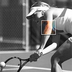 It usually begins gradually—until you can no longer ignore the pain. You may feel a sharp jab when you're shaking hands, playing golf, or on the tennis court. Tennis Elbow can plague all kinds of athletes, not just tennis players. The pain us Acl Knee Brace, Hip Brace, Elbow Pain, Knee Pain, Best Tennis Elbow Brace, Tendinitis Elbow, Plantar Fasciitis Night Splint, Soft Tissue Injury, Physical Therapy