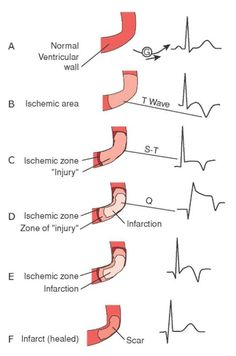 ECG Indications of Myocardial Ischemia, Injury & Infarction - NCLEX Quiz - tara Nursing Tips, Nursing Notes, Nursing Programs, Lpn Programs, Ob Nursing, Myocardial Infarction, Cardiac Nursing, Nursing Mnemonics, Respiratory Therapy
