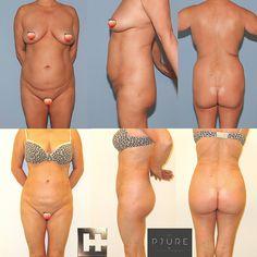 Vor und nach Fettabsaugung mit Eigenfettinjektion in den Po - brazilian butt lift BBL Liposuction, Bikinis, Swimwear, Fashion, Wels, Linz, Guys, La Mode, Fashion Illustrations