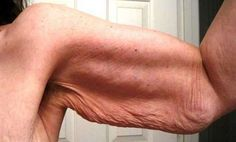 Combate la piel flácida con este remedio casero natural