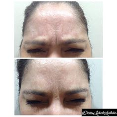 Botox Fillers, Smooth, Instagram