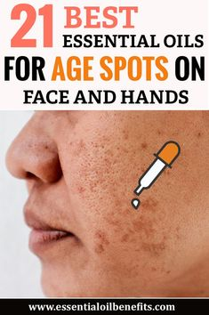 21 Best Essential Oils for Age Spots on Face and Hands - 21 best essential oils for age spots on your face and hands Estás en el lugar correcto para diy pro - Sun Spots On Skin, Brown Spots On Hands, Age Spots On Face, Spots On Legs, Dark Spots, Age Spots Essential Oils, Best Essential Oils, Young Living Essential Oils, Essential Oils For Psoriasis