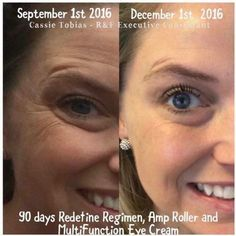 """Cassie Tobias: """"I was skeptical of R&F when I saw the Before and Afters in my newsfeed! I thought, no way! When I realized there was a 60 day money back guarantee I thought, well what do I have to lose! Here are my 90 day results and I couldn't be happier!!"""" Rodan + Fields Redefine regimen, AMP MD Roller, & Multi-function Eye cream #rfworks #eyes #wrinkles #60DayMoneyBackGuarantee #RodanAndFields #Redefine"""