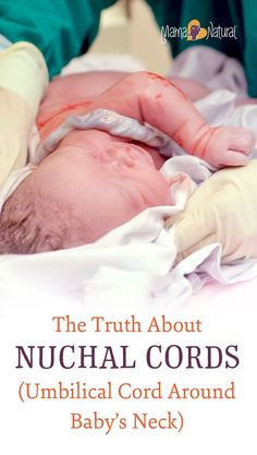 Here's WHY babies get nuchal cords, the associated RISKS, and YOUR OPTIONS when baby has his or her umbilical cord wrapped around their neck. http://www.mamanatural.com/nuchal-cord/