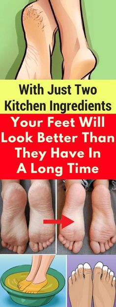 With Just Two Kitchen Ingredients, Your Feet Will Look Better Than They Have In A Long Time - infacter