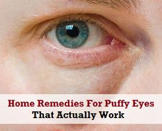 Water Retention Remedies How to get rid of bags under eyes fast - How to get rid of bags under eyes fast? How to get rid of under eye bags? Get rid of under eye bags and puffy eyes. How to get rid of eye bags overnight? Top 10 Home Remedies, Natural Remedies, Dark Circles Under Eyes, Eye Circles, Under Eye Bags, Puffy Eyes, Tips Belleza, Belleza Natural, Cool Eyes