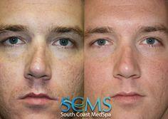 South Coast MedSpa Laser Acne Scar Removal how to get rid of acne scars Laser For Acne Scars, Laser Acne Scar Removal, Acne Scar Removal Treatment, Adult Acne Treatments, Pimple Scars, Skin Resurfacing, How To Get Rid Of Acne, Acne Skin