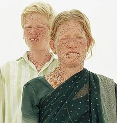 albino Dravidian Indians; the origin of the caucasian race? indian10