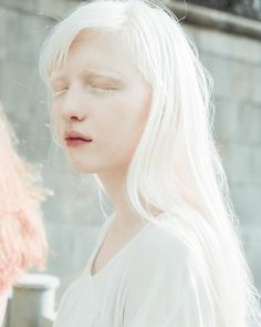 White Aesthetic, Aesthetic Girl, Modelo Albino, Pretty People, Beautiful People, Albino Girl, Albino Model, Half Elf, Aesthetic People