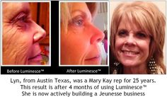 Lyn's results have been life changing!  Check out my facebook page    Younger You www.bettyclark.jeunesseglobal.com