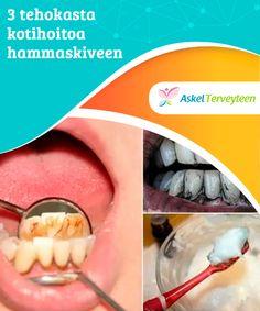 3 tehokasta kotihoitoa hammaskiveen   Hammaskivi onkellertävää ainetta, jota muodostuu bakteereista, ruoanjäämistä ja mineraalisuoloista.