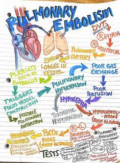severe pain in back Med Surg Nursing, Cardiac Nursing, Nursing Mnemonics, Pathophysiology Nursing, Nursing Exam, Nursing Degree, Funny Nursing, Nursing School Notes, Nursing Schools