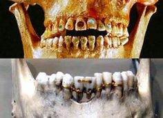 From jewel-capped teeth to golden bridges – 9,000 years of dentistry. Click through to take a fascinating look at ancient dentistry. #dentistry