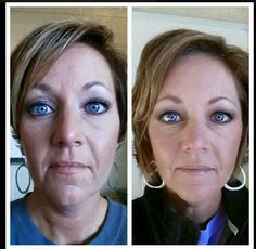 """""""First pic is heavy foundation and lots of concealer on my face in the 2nd picture I am only using R+F mineral peptides! This is just 2 months using the REDEFINE regimen, Amp MD Roller and then 1 month using the REVERSE Regimen and Redefine Multi-function Eye Cream."""""""