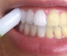 Natural Teeth Whitening Remedies You Won't Need Whitening Strips If You Do This Once Daily - This simple to make DIY nail growth serum will fix dry, brittle nails and encourage fast and healthy nail growth in just 2 weeks! Teeth Whitening Remedies, Natural Teeth Whitening, Skin Whitening, Diy Skin Care, Skin Care Tips, Skin Tips, Beauty Hacks For Teens, Stained Teeth, Nail Growth