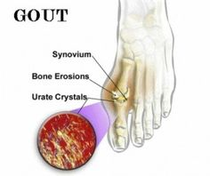 ROSEMARY OIL FOR GOUT- This links to a whole site of home remedies.