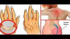 Despídete del dolor de nervio ciático en menos de diez minutos con este maravilloso método natural