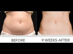 Weight loss skin reduction surgery picture 4