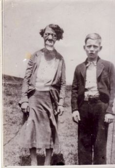 Grace McDaniels The Mule Faced Woman, cursed with progressive tumors on her face and lips, and her son Elmer Old Pictures, Bizarre Pictures, Human Oddities, Vintage Circus, Human Condition, Interesting History, American Horror, Macabre, Weird