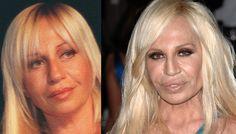 Los diez famosos peor operados, ¡antes y después!