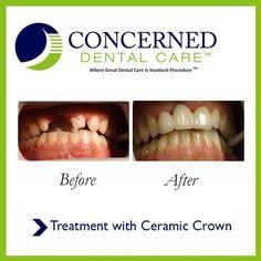 #BeforeandAfter #CeramicCrown #dentistry #dentist #teeth #smile #whiteteeth #smile #perfectsmile
