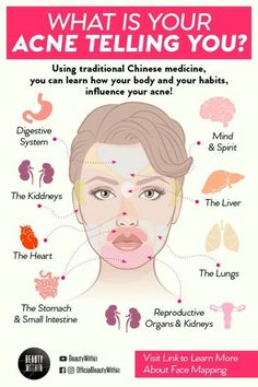 Do you ever wonder why those acne breakouts appear at the same spot? The concept of face mapping can exactly tell you how different flare ups of acne or pimples in certain locations all have various c Skin Tips, Skin Care Tips, Skin Care Regimen, Beauty Care, Beauty Skin, Beauty Tips For Skin, Beauty Ideas, Beauty Secrets, Gesicht Mapping
