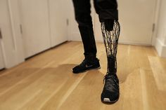 """The """"Exo-Prosthetic"""" is an artificial leg created by Brooklyn-based designer William Root that was 3D printed with titanium using the laser sintering form of additive manufacturing. The limb was created using scans of the wearer's truncated and intact legs formed into an exoskeletal structure for a lightweight but durable build."""