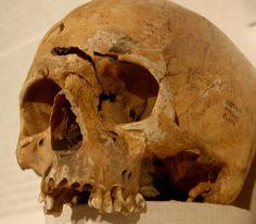 Skull damaged by arrowhead | Flickr - Photo Sharing!