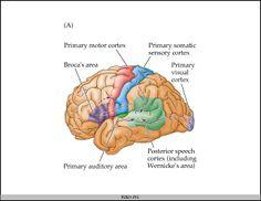 Spirited Speech Pathology: Aphasia!!!