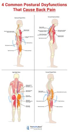 17 Muscles That Cause the MOST Back Pain (and how to get RELIEF!) These four postural dysfunctions are behind most back pain and neck pain. Learn how to correct these muscle imbalances to get lasting pain relief. Lower Back Pain Relief, Muscle Pain Relief, Upper Back Pain, Causes Of Back Pain, Neck Pain Relief, Sciatica Pain Treatment, Tight Back Muscles, Lower Back Muscles Anatomy, Yoga