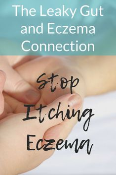 Holistic Remedies Are you struggling with eczema? The solution could be fixing your leaky gut. Find out how leaky gut and eczema are connected. Eczema Remedies, Holistic Remedies, Health Remedies, Natural Remedies, Leaky Gut, Eczema Relief, Health