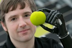 Touch Bionics Prostheses