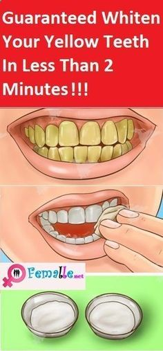 Natural Teeth Whitening Remedies Guaranteed Whiten Your Yellow Teeth In Less Than 2 Minutes Health Tips For Women, Health Advice, Health And Beauty, Teeth Whitening Remedies, Natural Teeth Whitening, Whitening Kit, Healthy Tips, How To Stay Healthy, Healthy Drinks