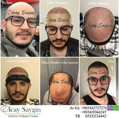 Best Hair Transplant Doctor in Turkey - Top Aesthetic Dermatology Trends 2020 Eyebrow Transplant, Hair Transplant Results, Hair Transplant Surgery, Best Hair Transplant, Good Doctor, Doctor In, Aesthetic Dermatology, Hair Restoration, Clinique