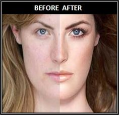 Everyone wants a skin that is smooth and has a healthy shine as it is a representation of youth, liveliness and wellness. Unluckily, external factors including environmental pollution, ultraviolet rays and climatic changes badly make it a difficult task to achieve. However, these excuses are not