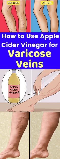 Often people have to face lots of stubborn diseases like varicose veins. In this condition people have to suffer from veins of the lower extremity and other internal organs. The causes of this disease are not known in detail but are mostly due to heredit Apple Cider Vinegar Cellulite, Apple Cider Vinegar Bath, Apple Cider Vinegar Remedies, Holistic Remedies, Health Remedies, Herbal Remedies, Natural Treatments, Natural Cures, Natural Healing
