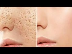 Pores are openings that allow the skin to breathe. Open pores are similar to small holes and this treatment can disappear them for good. Fitness Workout For Women, Health And Fitness Tips, Health And Beauty, Natural Remedies For Migraines, Natural Health Remedies, Open Pores On Face, Creme Anti Age, Natural Detox, Tips Belleza
