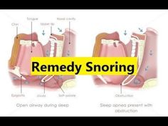 Remedy Snoring - How Do You Stop Snoring #snoring