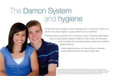 Damon System braces are easy to keep clean