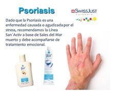 Types Of Psoriasis, Scalp Psoriasis Treatment, What Is Psoriasis, Psoriasis Arthritis, Plaque Psoriasis, Psoriasis Remedies, Smoking Causes, Mariana, Aromatherapy