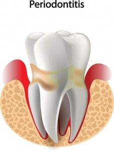 Do you know how to treat periodontal disease? Family Dentistry, Dental, Treats, Tips, Sweet Like Candy, Goodies, Advice, Dentist Clinic, Snacks