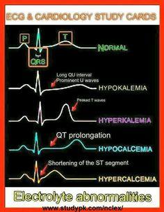 Anormalidades electroliticas