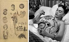"a drawing from 1932, ""The Abortion,"" addresses Kahlo's inability to conceive children following the bus accident. Right, Kahlo decorates one of her many plaster corsets in 1951."