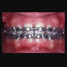 Throw back Thursday ! Braces have come a long way this is what braces were like in the 70s and 80s #metalbraces #longislandbraces #levittown #longisland #orthodontics #orthodontist #newyork#suffolkcounty #nassaucounty #invisalign #acceledent #Drdavid #tbt by drdavidorthodontics Our Invisalign Page: http://www.myimagedental.com/services/cosmetic-dentistry/invisalign/ Other Cosmetic Dentistry services we offer: http://www.myimagedental.com/services/cosmetic-dentistry Google My Business…