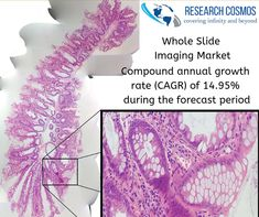 Whole slide imaging market is anticipated to expand at a compound annual growth rate (CAGR) of 14.95%, leading to a revenue of USD $ 995 Mn by 2023. View key competitors of the market  -