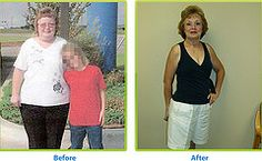 Does effexor xr make you lose weight image 3