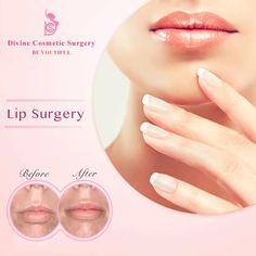 #beautiful lips says it all.... #lip #lips #lipaugmentation #dramitgupta #divinecosmeticsurgery #pout #liplines #perfectlips #dermalfiller #juvederm #injectables #lipinjections #kissablelips #beautifullips #filler #fullerlips #plasticsurgery #gurgaon #delhi #cosmeticsurgery Consult us  WhatsApp +919999972949 Call: +91 98119 94417 Email- info@divinecosmeticsurgery.com  Website: www.divinecosmeticsurgery.com Delhi-Address: L 7 South Extention Part 2 New Delhi 110049, INDIA Gurgaon-Address…